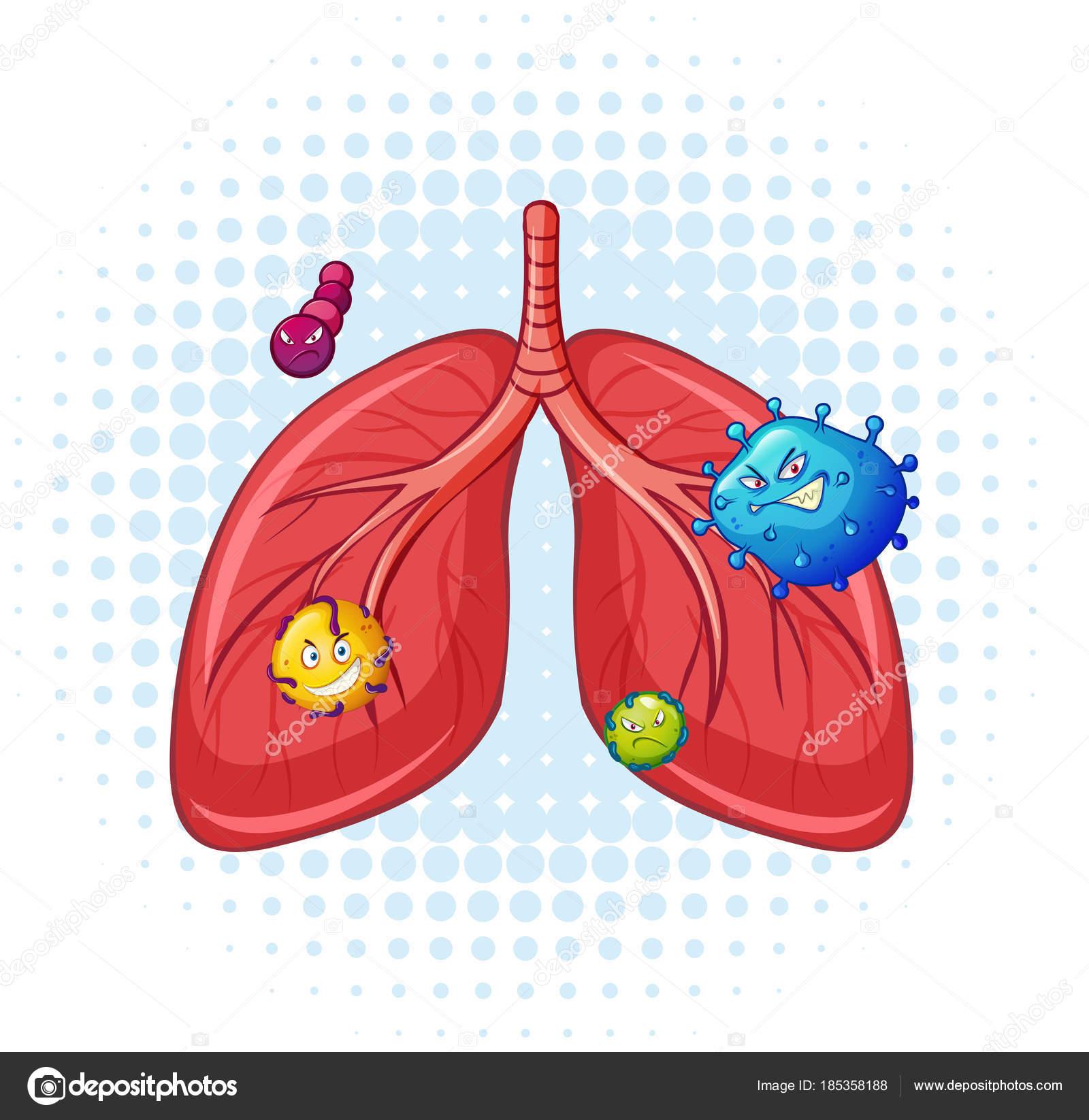Pulmones humanos con virus — Vector de stock © blueringmedia #185358188
