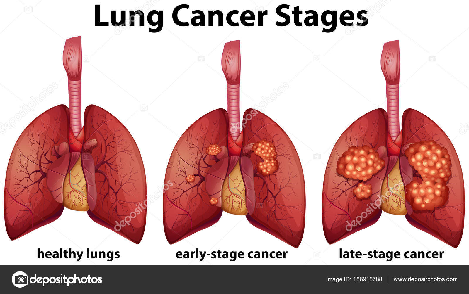 Stages Of Lung Cancer Diagram