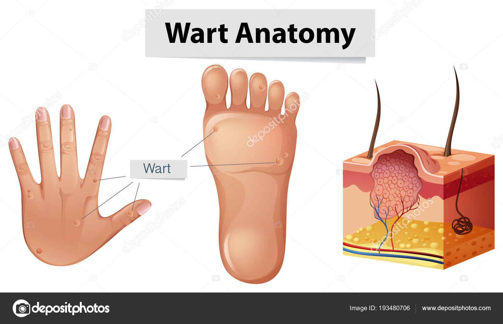 Menschliche Anatomie Warze an Hand und Fuß — Stockvektor ...