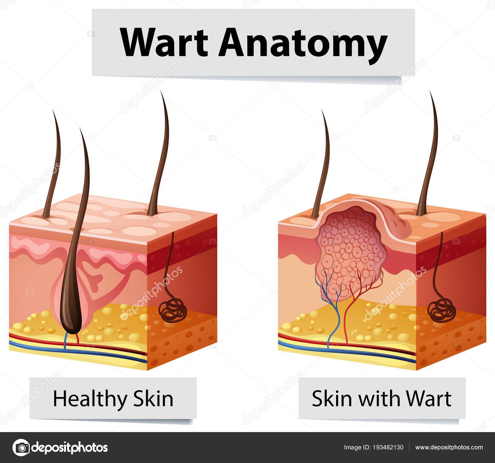 Warze menschliche Haut Anatomie Abbildung — Stockvektor ...