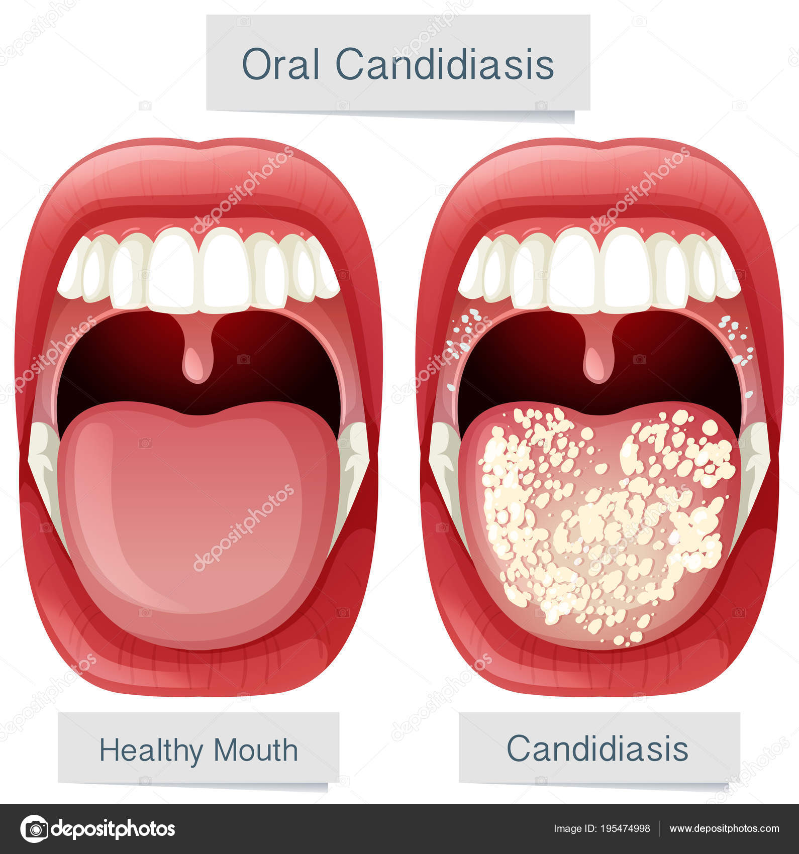 Human Mouth Anatomy Oral Candidiasis — Stock Vector © blueringmedia ...