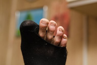 Male foot with dirty fingers and nails in a holey toe. The concept of the monetary crisis and poverty