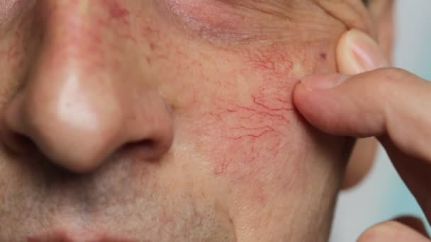 Mans face skin with vascular stars and couperose. Close up view of capillaries on the skin, telangiectasias