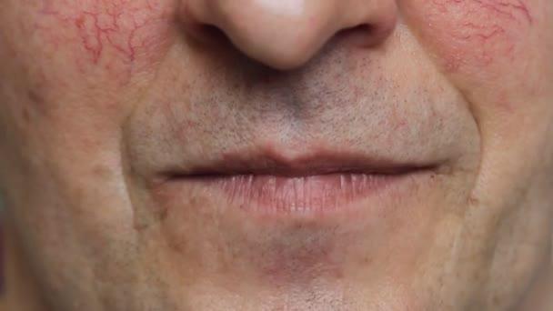 Mann mit schlechten Zähnen, der redet, lächelt und lacht. Nahaufnahme von raucherkranken Zähnen