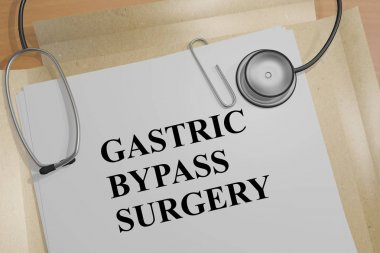 Gastric Bypass Surgery - medical concept