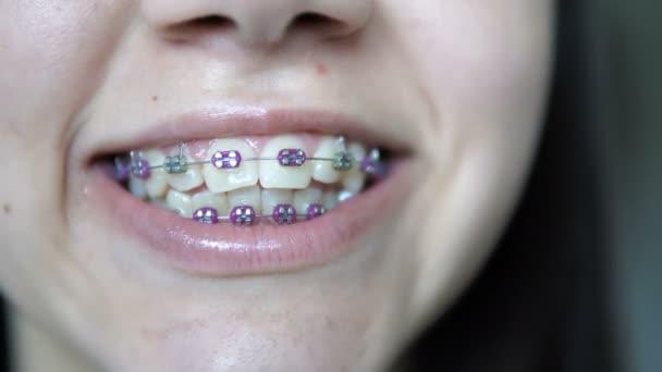 lächelndes Teenager-Mädchen zeigt ihre Zahnspange