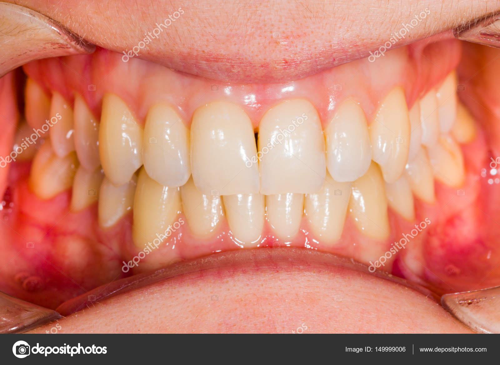 Zahnärztliche Anatomie — Stockfoto © Lighthunter #149999006