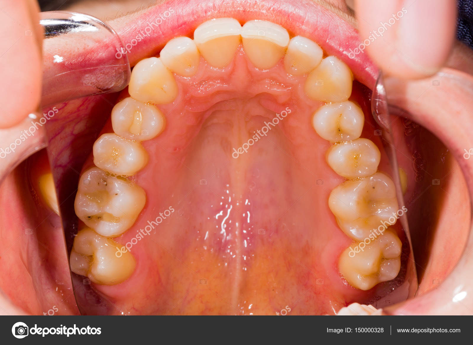 una anatomía Dental — Foto de stock © Lighthunter #150000328