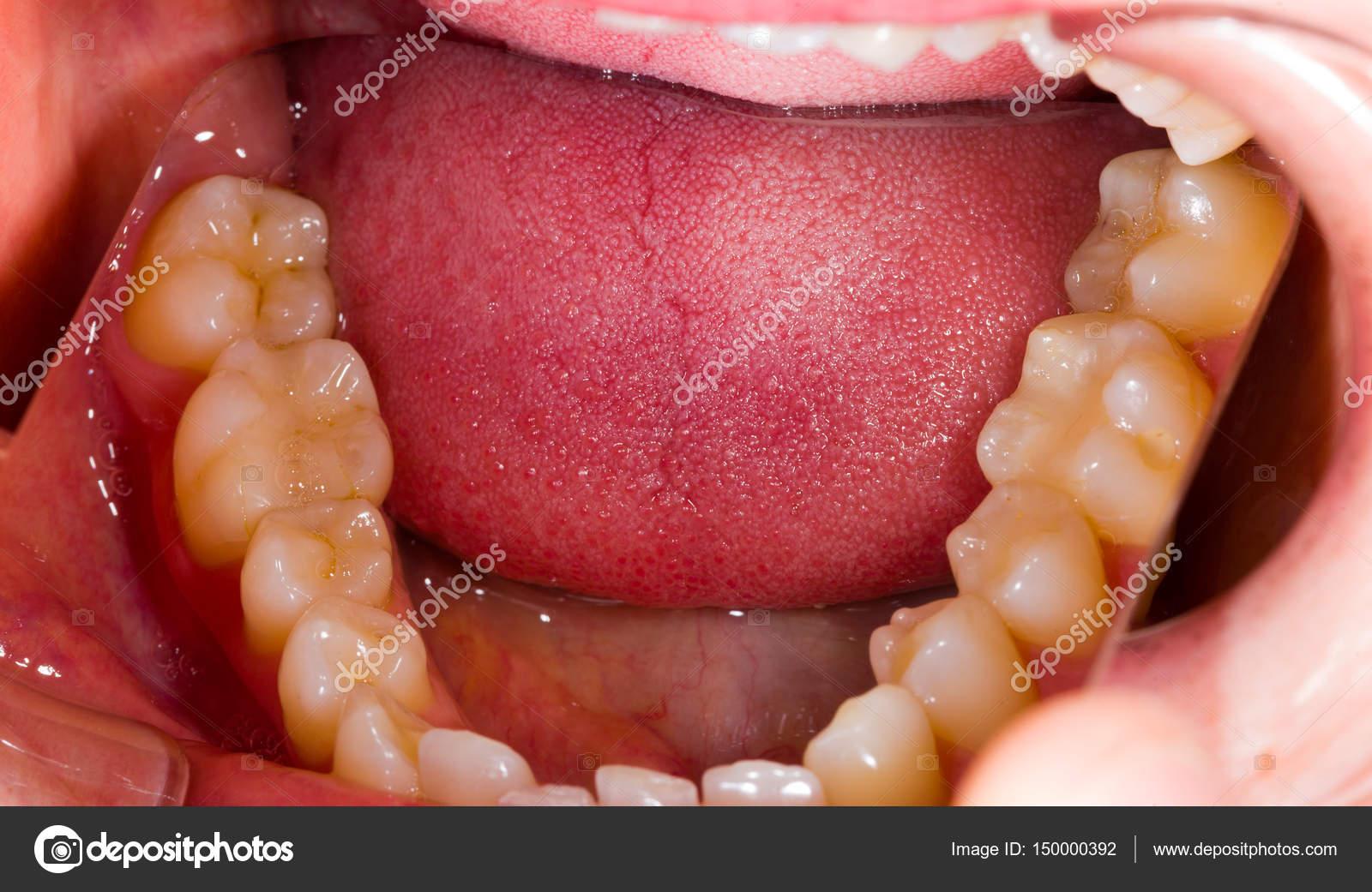 Zahnärztliche Anatomie — Stockfoto © Lighthunter #150000392