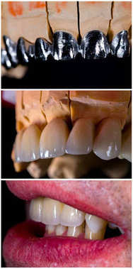 Mimicking nature in dentistry