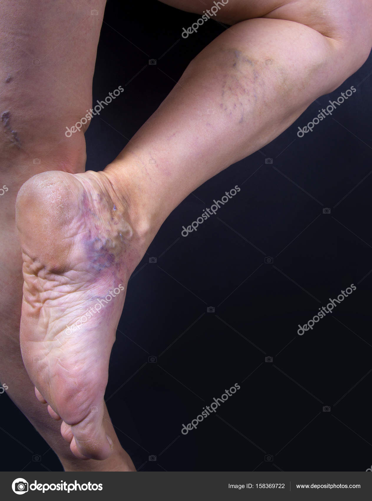 Human Foot With Varicose Veins Stock Photo Hriana 158369722