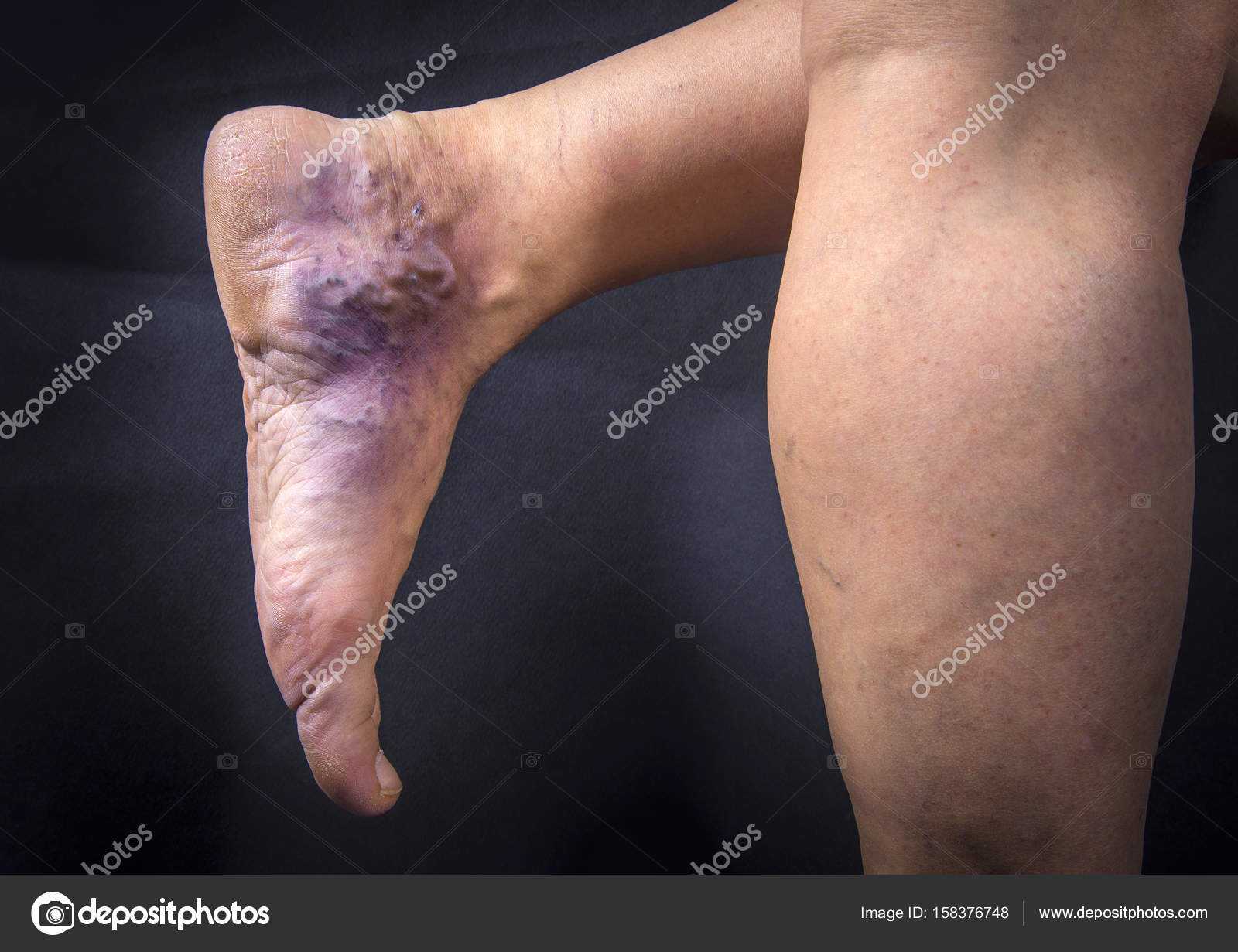 Human Foot With Varicose Veins Stock Photo Hriana 158376748