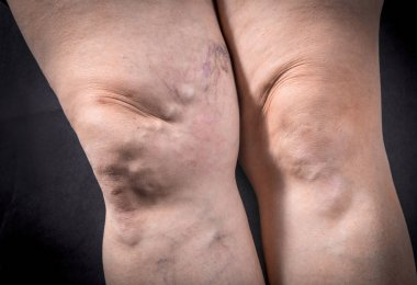 Human legs with varicose veins