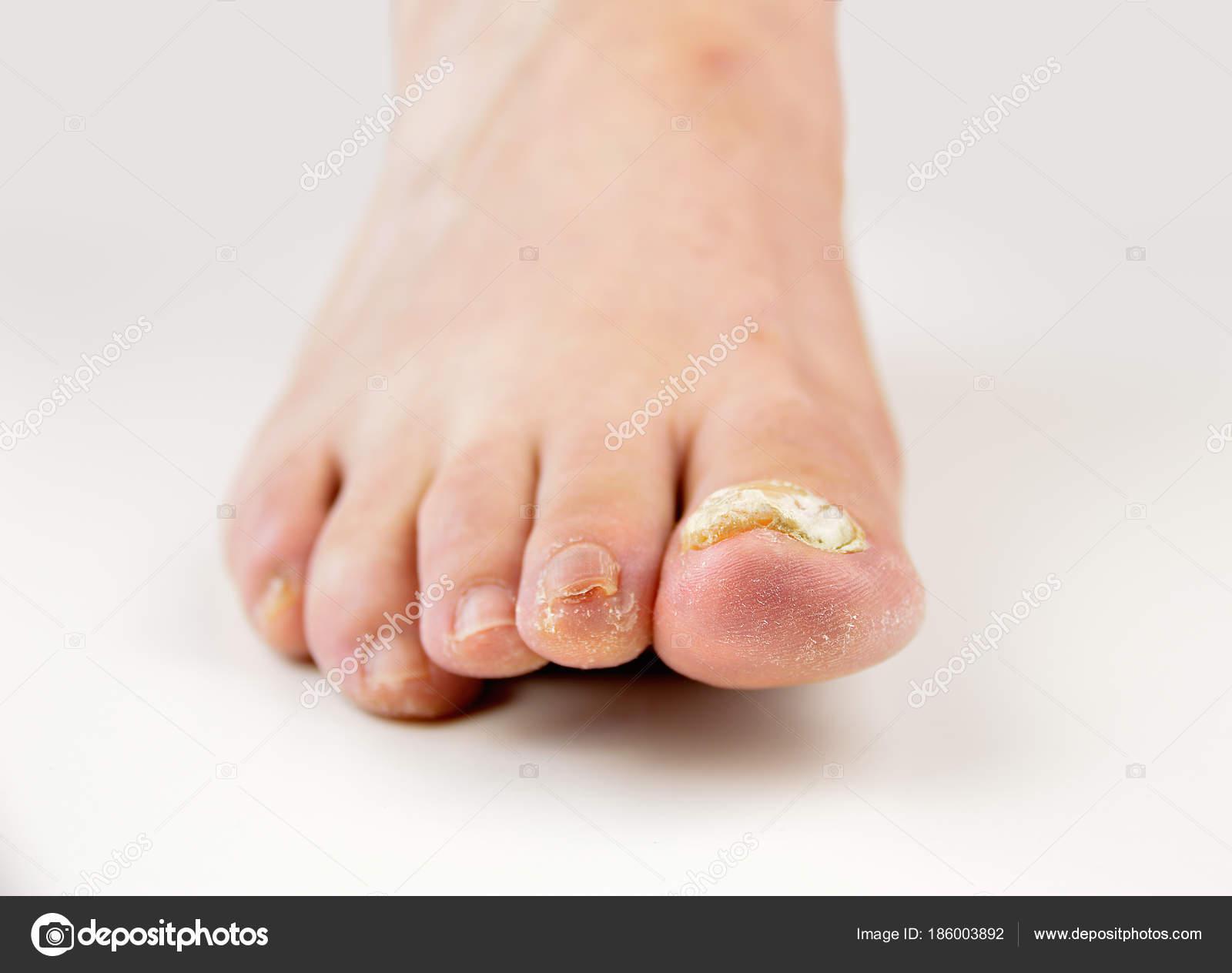 Charmant Große Zehe Nagelkunstentwurf Bilder - Nagellack-Design ...