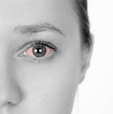 Girl has red eyes. Disease of the eyeball