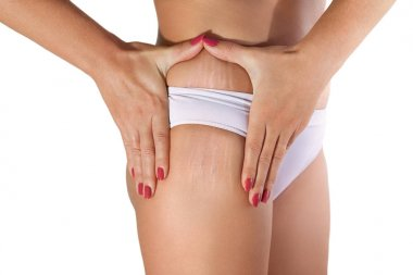Woman examining her stretch marks
