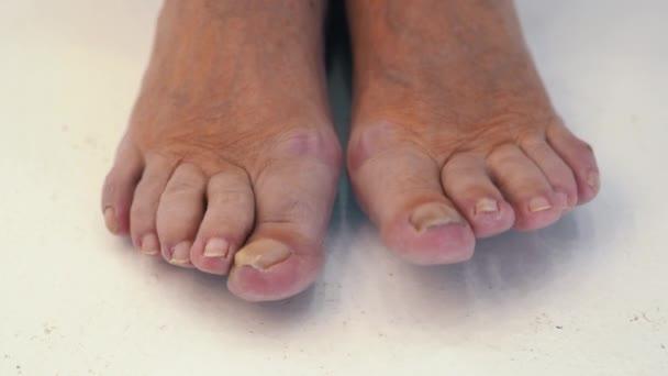 Samičí nohy s houbou na nohách zblízka. Prsty s houbou. Nohy staré ženy