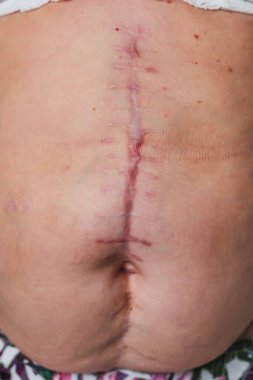 Post-operative scar on an elderly woman's torso body. Scar after removal of the gallbladder. The seams on the abdomen after surgery