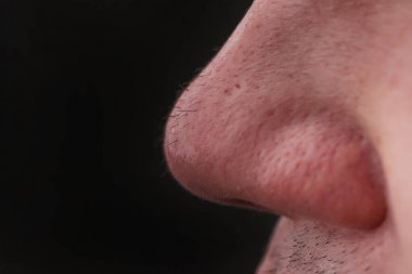 Man with nose hair close-up. Hair grows on the surface of the skin of the nose. Increased hairiness on the face. Hairy male fleshy nose close-up.