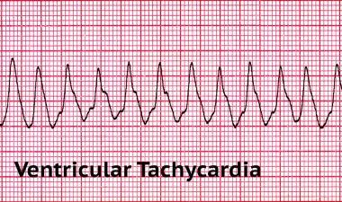 Ventricular Tachycardia - Deadly Heart Rhythm