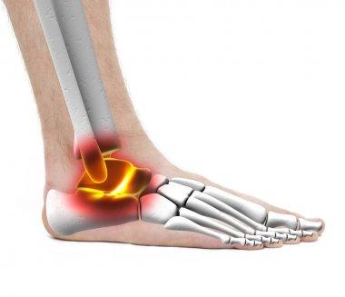 Ankle Pain Injury - Anatomy Male - Studio photo isolated on whit