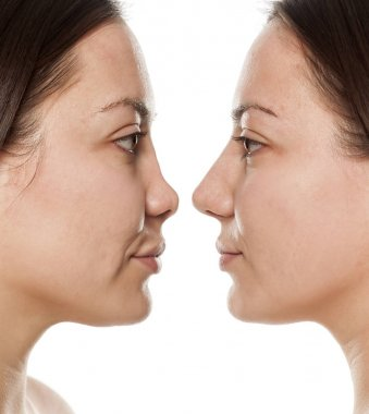 Woman's profile, before and after nose surgery