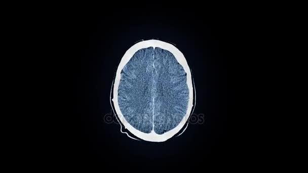 Human brain mri scan vdeo de stock znichka pro 159517658 human brain mri scan vdeo ccuart Choice Image