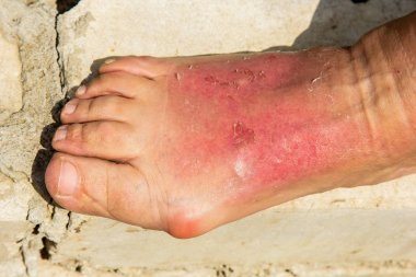 As a result of a skin burn, the woman's leg was swollen in the ankle region. Dermatitis, expressed by redness, peeling, and soreness after sunbathing. Sore foot bump.