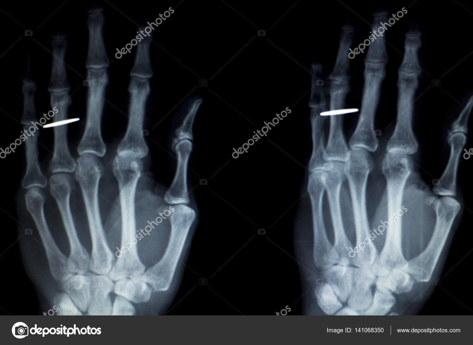 Finger der Hand Implantat Xray scan — Stockfoto © edwardolive #141068350
