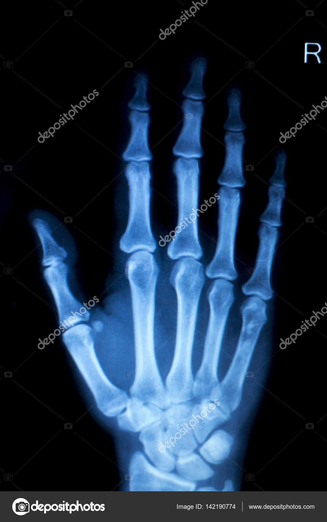 Hand-Finger-Verletzungen Xray scan — Stockfoto © edwardolive #142190774