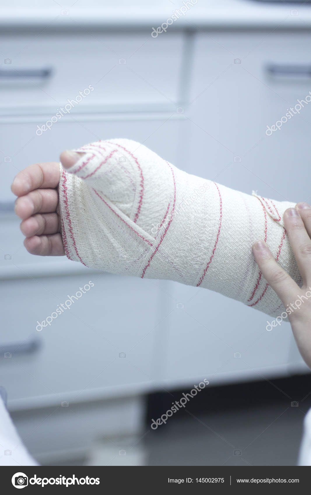 Doctor patient plaster cast — Stock Photo © edwardolive