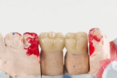 ceramic crowns to try on a tooth model