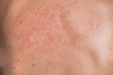 Skin fungus on his back. Red spots on the backs of men. Mold.