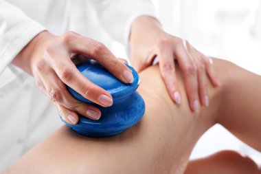 Lymphatic drainage. Chinese cupping massage thigh.