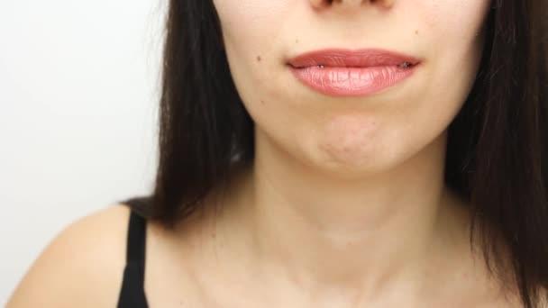 Zahnspangen in glücklichen Frauenmündern, die Ähnliches zeigen. Brackets an den Zähnen nach der Aufhellung. Selbstbindende Brackets mit Metallbändern und grauen Gummibändern oder Gummibändern für perfektes Lächeln. Kieferorthopädische Zahnbehandlung