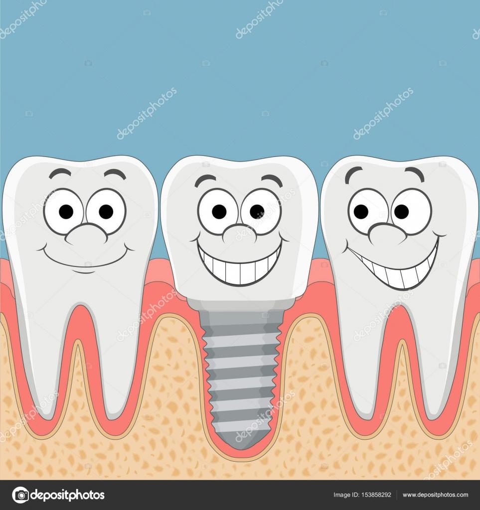 Menschliche Zähne und Zahnimplantate — Stockvektor © vantuz #153858292