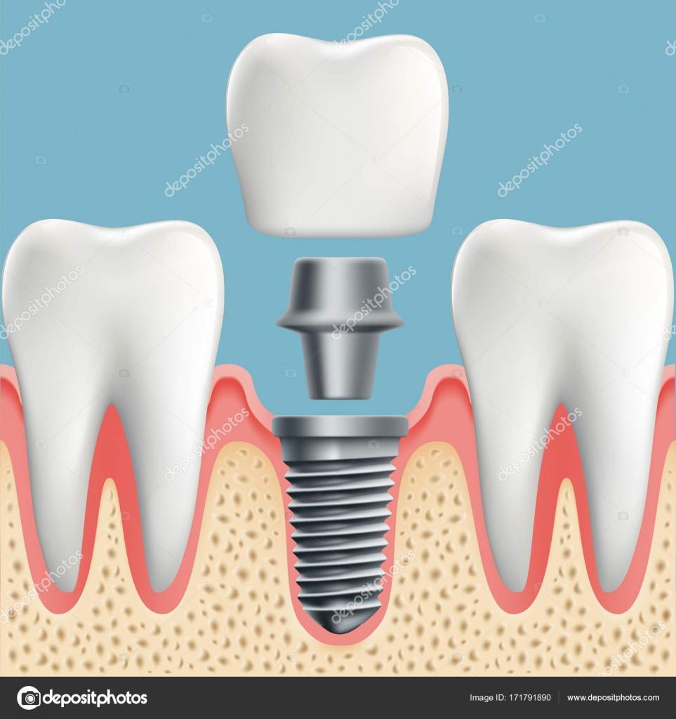 Menschliche Zähne und Zahnimplantate — Stockvektor © vantuz #171791890