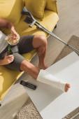 Top kilátás férfi törött lábbal dohányzóasztalon iszik sört és eszik popcorn kanapén otthon