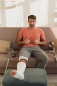 Jóképű férfi, gipszkötéssel a lábán, hüvelykujjával a kanapén.
