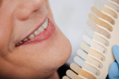 cropped view of man smiling near teeth palette in clinic