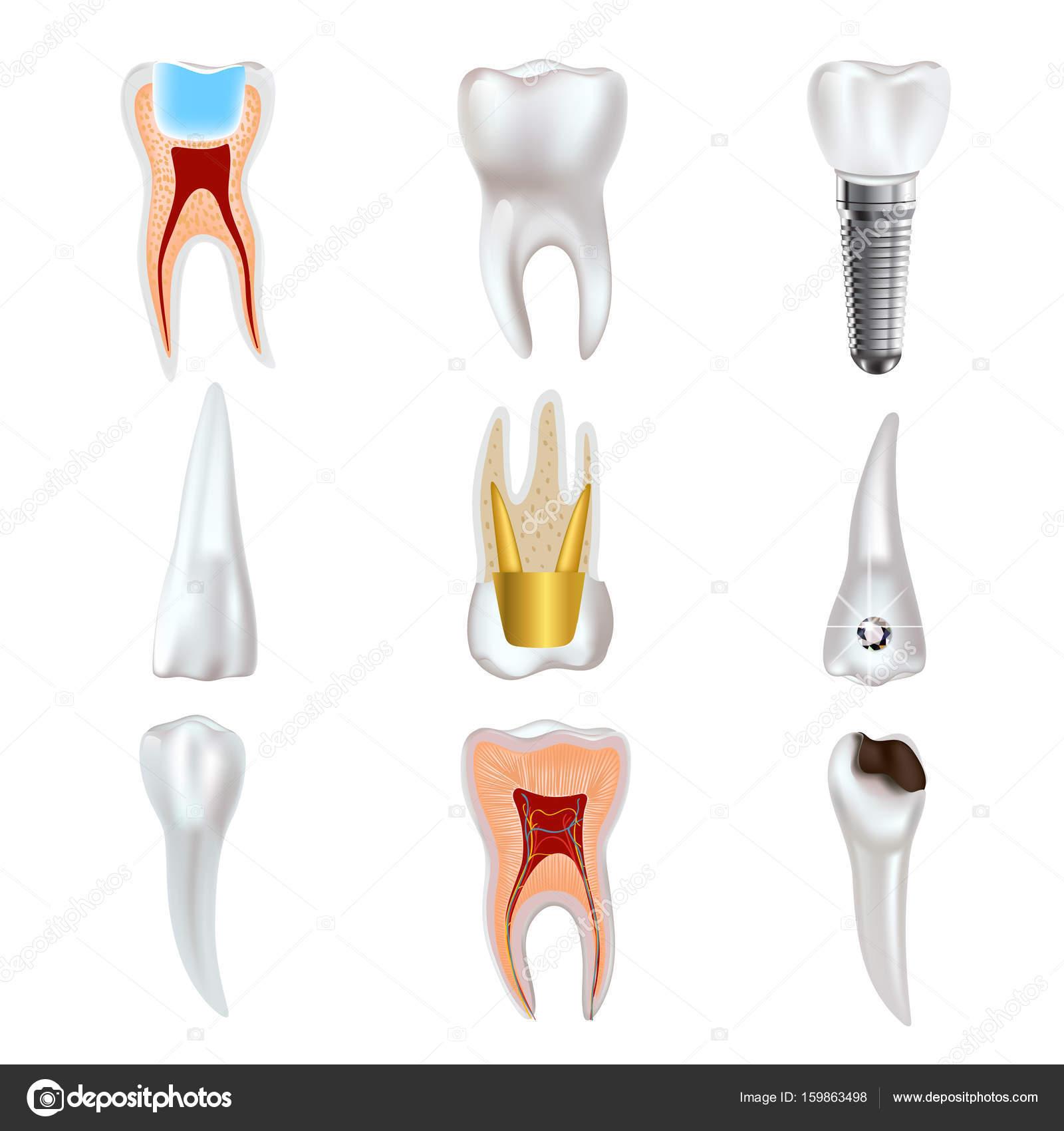Zahnimplantat und echten Zahn-Anatomie-Icon-set — Stockvektor ...