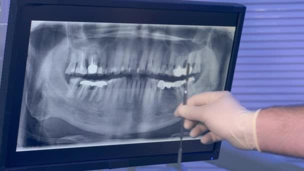 Rayos x foto panorámica de los dientes y una mano de dentistas con ...