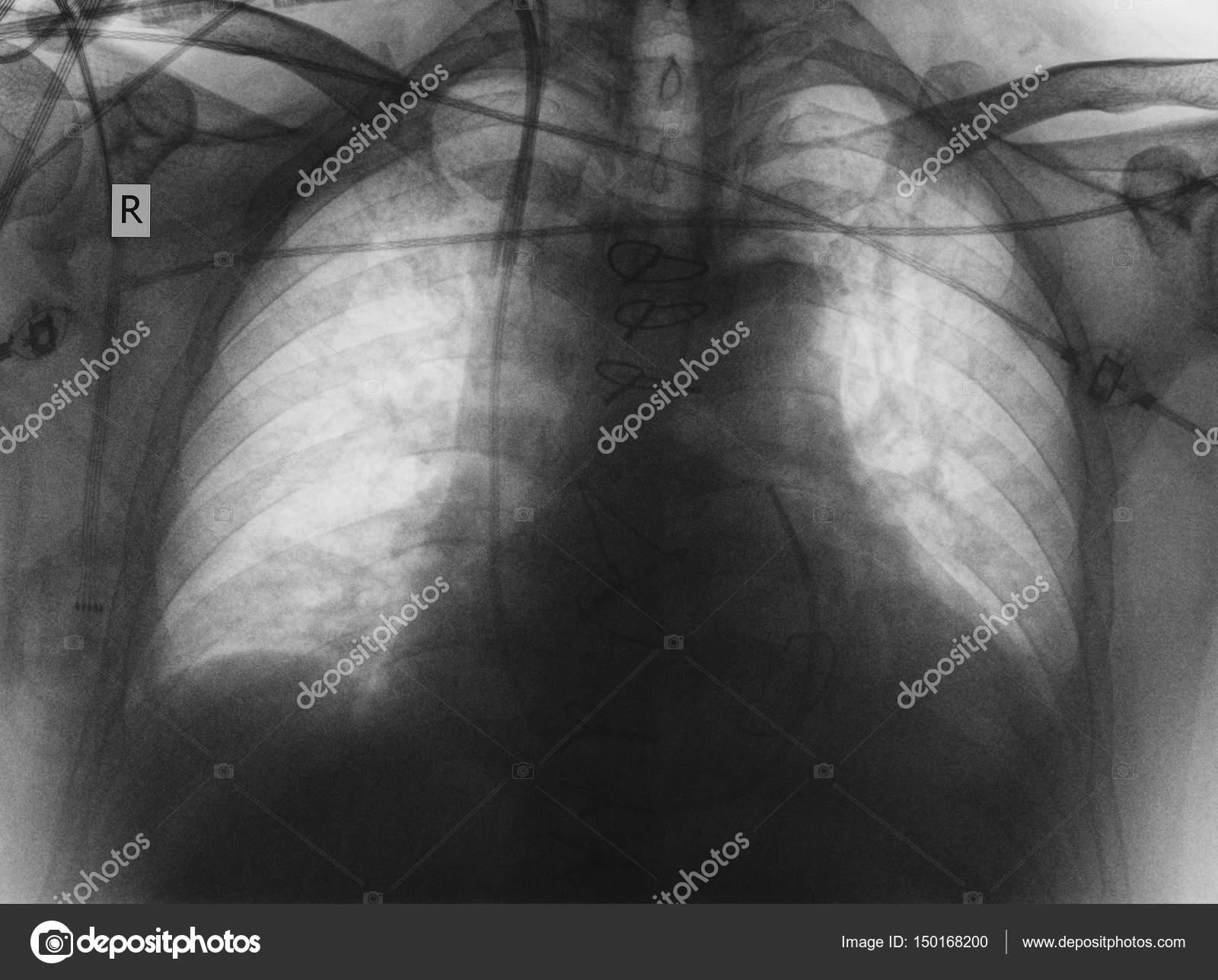 Röntgen Filmi Olan Hastanın Akciğer Hastalığı Stok Foto Sudok1