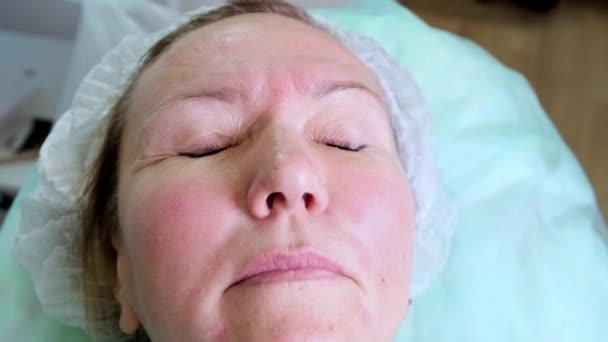 kozmetológus orvos készíti a nők arcát kozmetikai injekció Botox, injekciók hialuronsav. Egy nő egy szépségszalonban. plasztikai sebészet