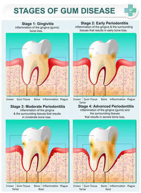 Stage of Gum Disease