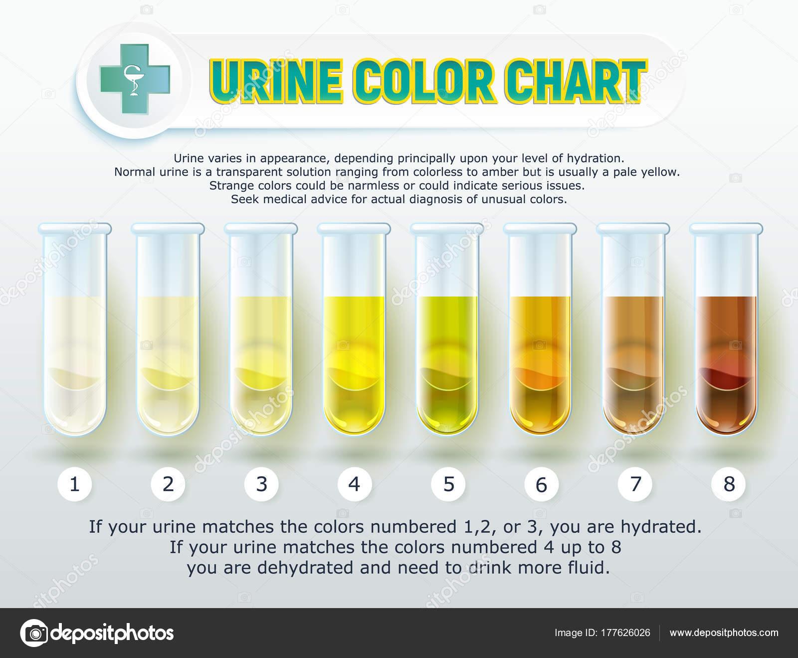 Urine Kleurenoverzicht 1 Stockvector 169 Sergey7777 177626026