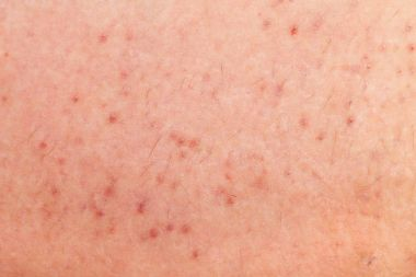 Folliculitis on human skin