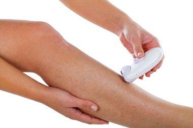 Varicose veins on woman's leg & epilator