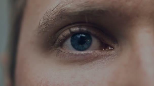 gebläutes Auge, extreme Nahaufnahme