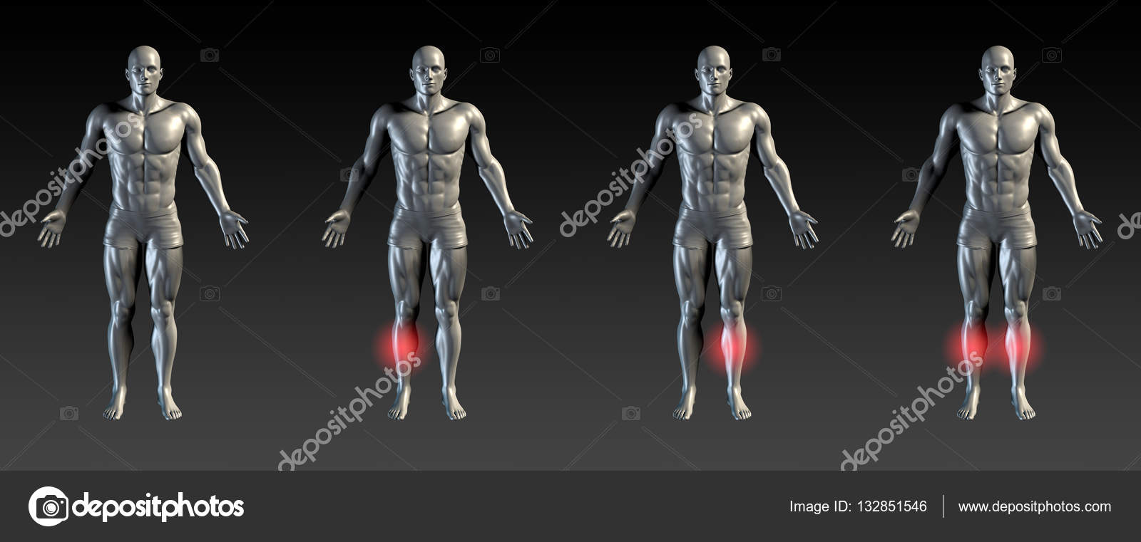 Shin Splints Concept — Stock Photo © kentoh #132851546